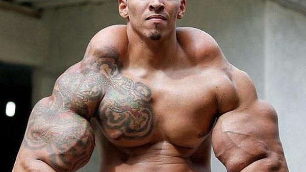 El Hulk brasileño perdió peso para que no le amputaran los brazos