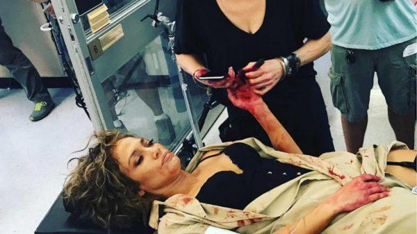 ¿Qué le pasó a Jennifer López?