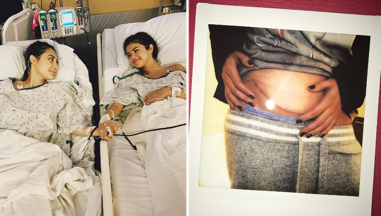 Selena Gómez recibió un riñón de su mejor amiga y lo hace público
